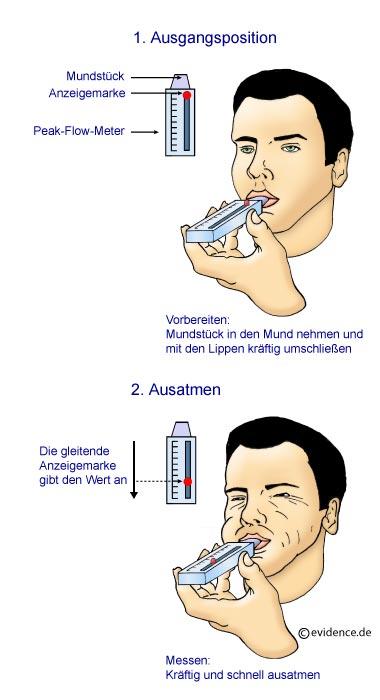 wie hört sich asthma an